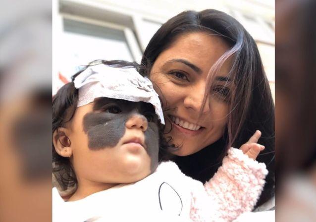 Dziewczynka w masce przeszła pierwszą operację