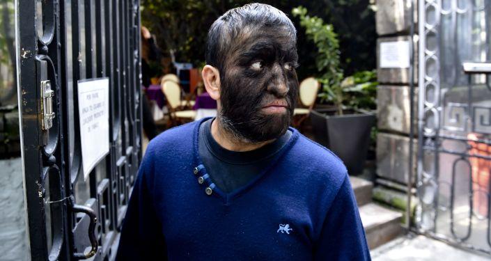 """Ciepiący na hipertrichozę Meksykańczyk Jesus Acevez, znany jako """"Wilkołak Chui"""""""