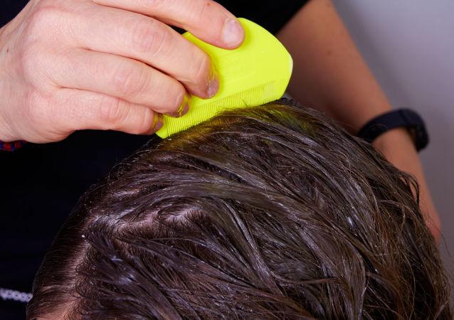 Sprawdzanie obecności wszy we włosach