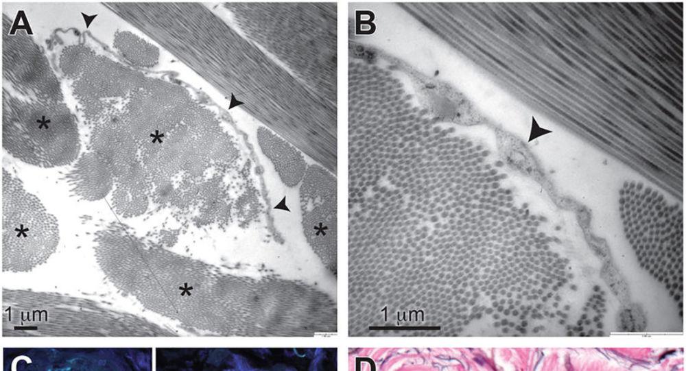 Struktura odkrytego przez amerykańskich naukowców nowego ludzkiego organu - sieci mikroskopijnych kanałów