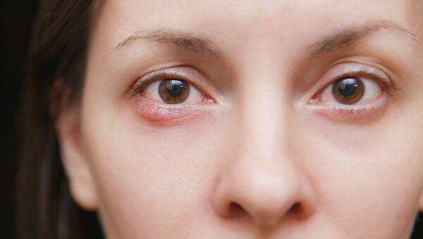 Zapalenie oczu - Sputnik Polska