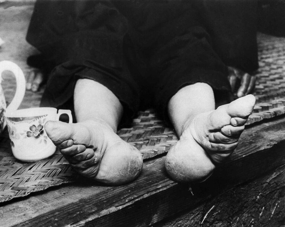 Krępowanie stóp w Chinach