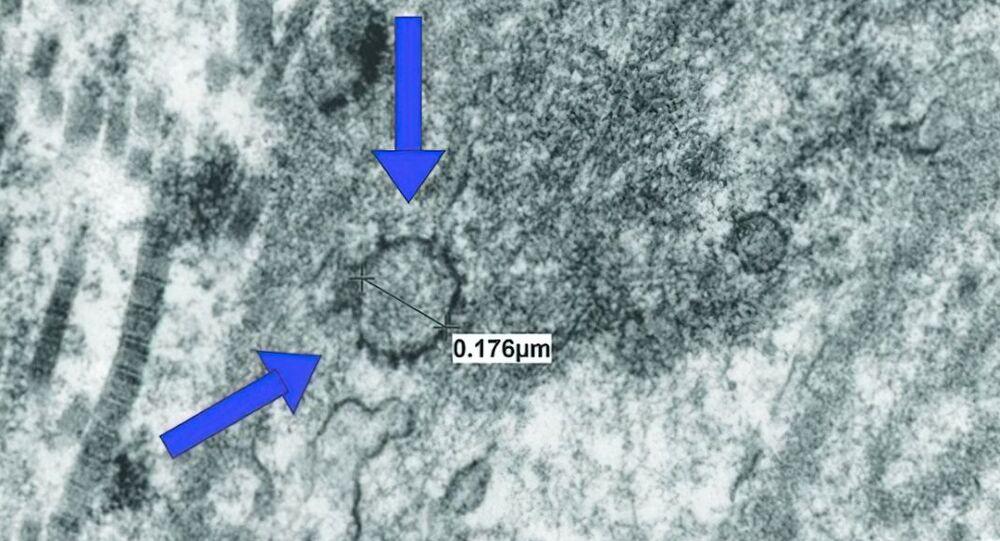 Koronawirus SARS-CoV-2 w tkance prącia