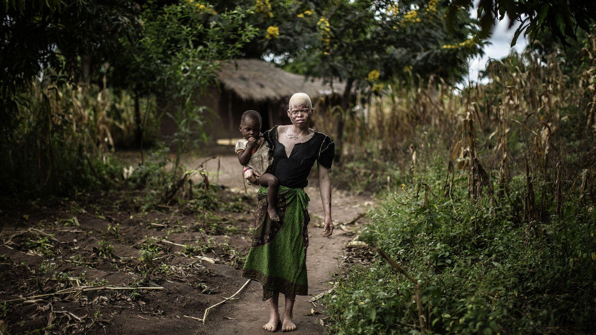 Kobieta z albinizmem - Sputnik Polska, 1920, 29.07.2021