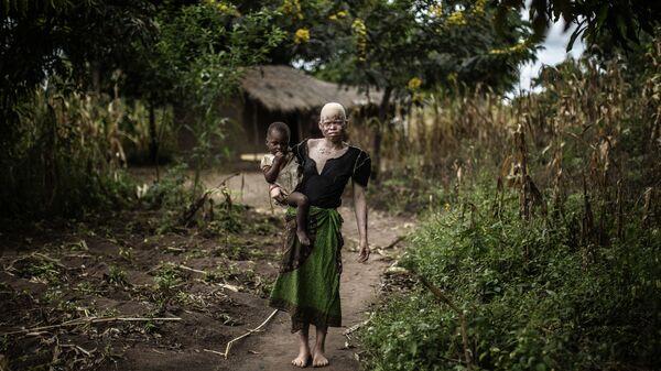 23-летняя малавийская женщина-альбинос с дочерью на руках возле своей хижины в районе Нколе, округ Мачинга, Малави - Sputnik Polska