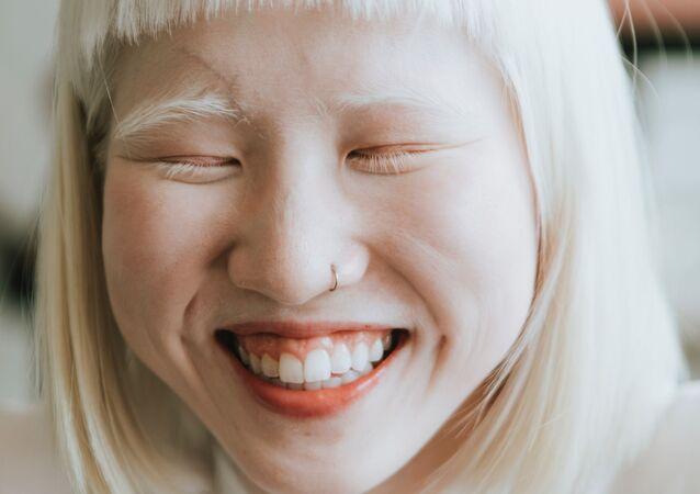 Dziewczyna z albinizmem