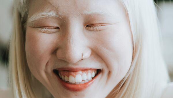 Dziewczyna z albinizmem - Sputnik Polska