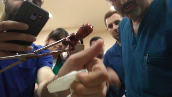Gumowt pocisk wyciągnięty z ciała producenta agencji informacji wideo Ruptly - Sputnik Polska