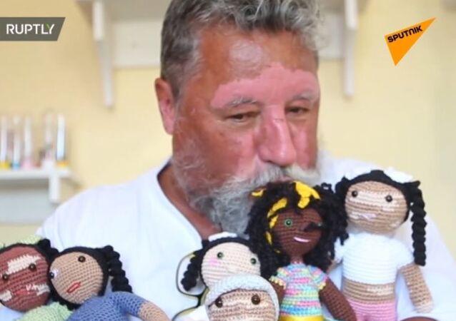 Emeryt wykonuje na szydełku lalki z oznakami bielactwa