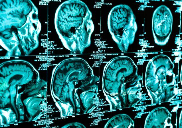 Skanowanie mózgu
