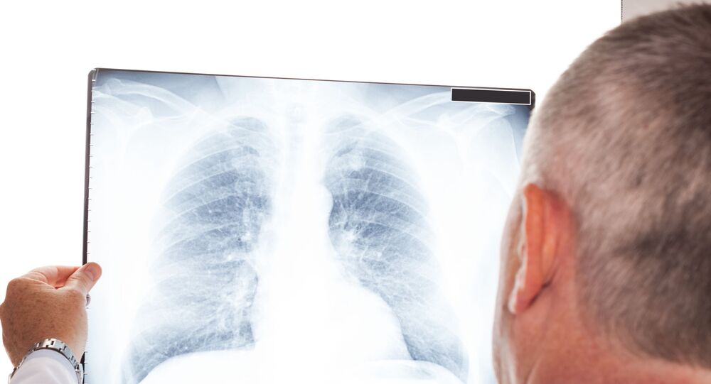 Lekarz z rentgenem płuc