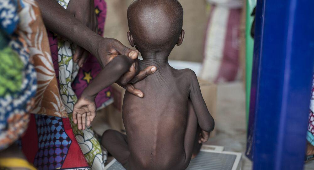 Głodujące dziecko, Nigeria