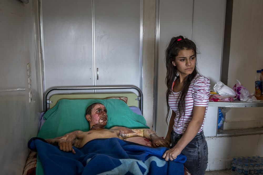 Zdjęcie Injured Kurdish Fighter Receives Hospital Visit, fot. Ivor Prickett, laureat konkursu World Press Photo 2020