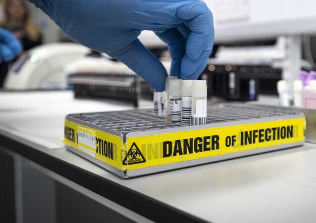 Probówki w laboratorium badającym koronawirusa