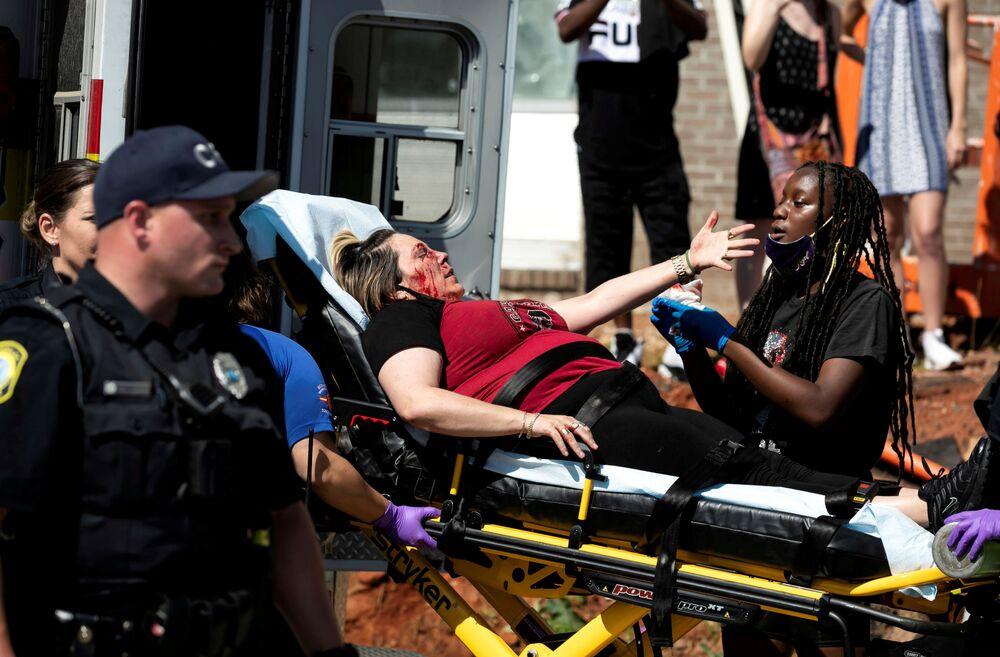 Ranna kobieta w stanie Columbia