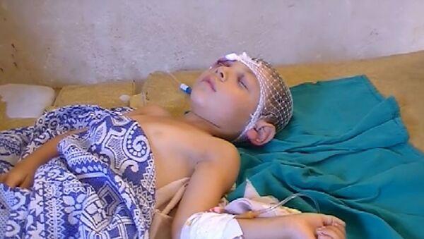 Syryjscy dzieci są w szpitalu - Sputnik Polska