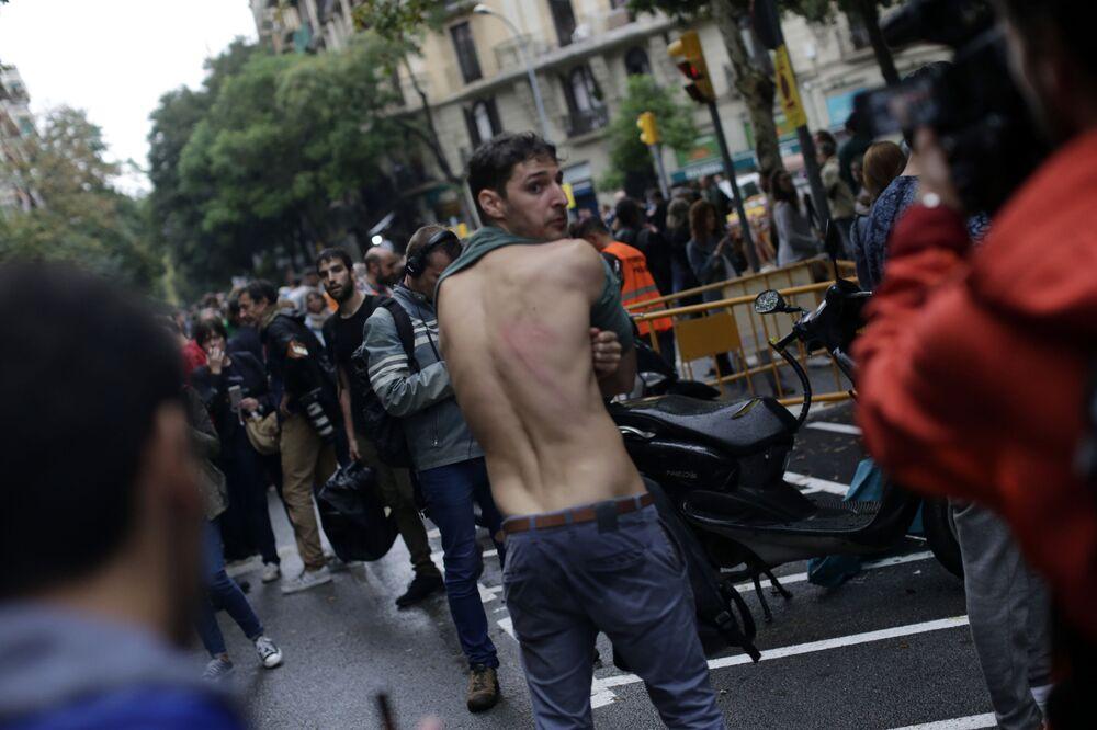 Mężczyzna pokazuje ślady na plecach po starciach podczas referendum w sprawie niepodległości Katalonii