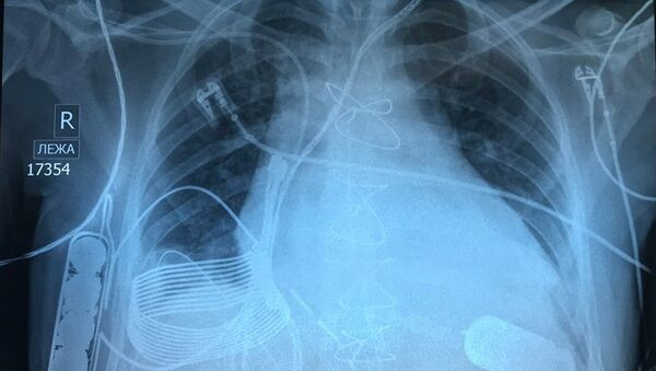 Zdjęcie rentgenowskie klatki piersiowej mężczyzny ze wszczepionym bionicznym sercem - Sputnik Polska