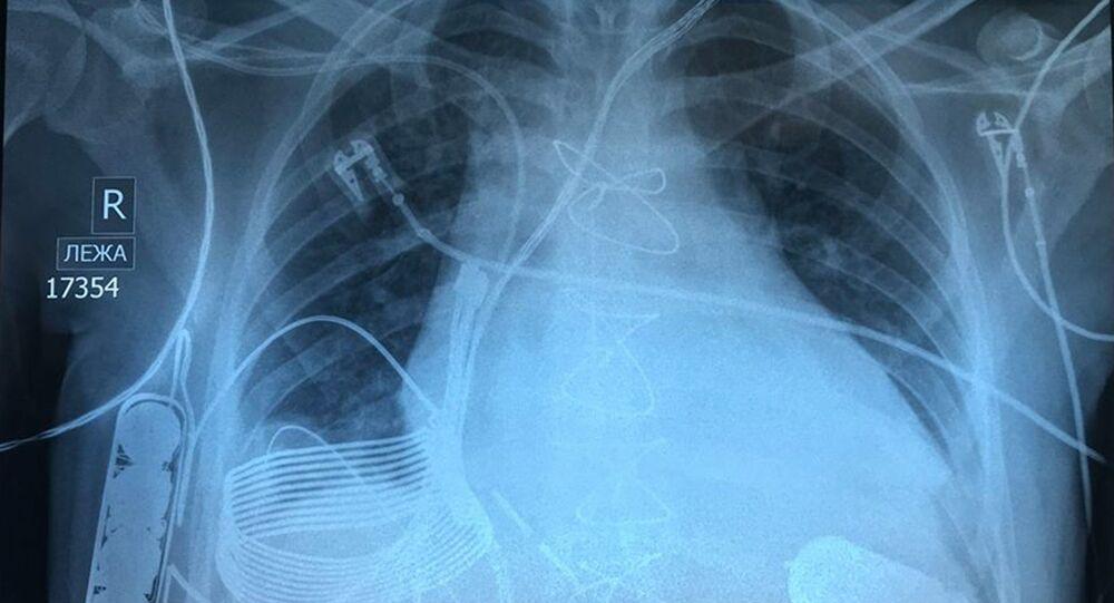 Zdjęcie rentgenowskie klatki piersiowej mężczyzny ze wszczepionym bionicznym sercem